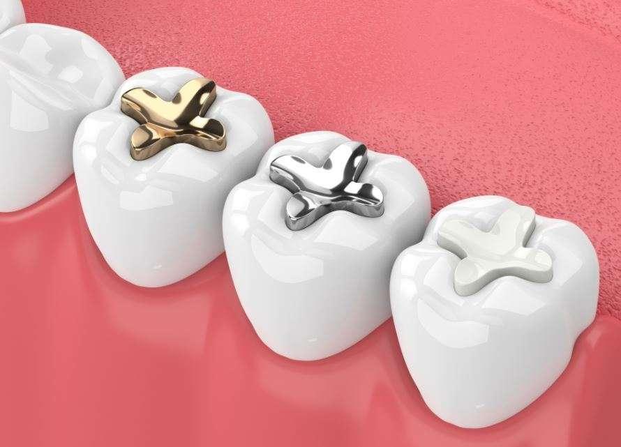 انواع حشو الاسنان
