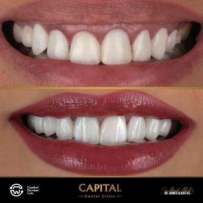 تجميل الاسنان واللثة
