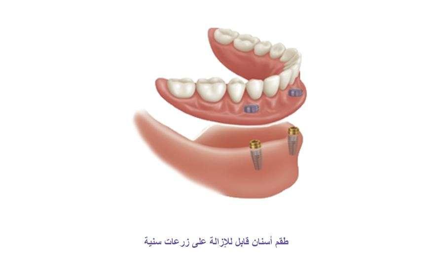 زراعة الفك الكامل: أفضل انواع زراعة الاسنان كاملة للفك العلوي والسفلي