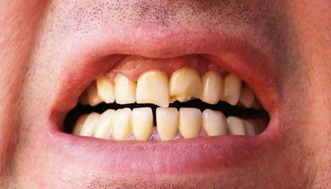 علاج تآكل الأسنان