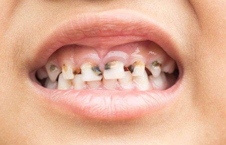 تسوس الأسنان عند الأطفال