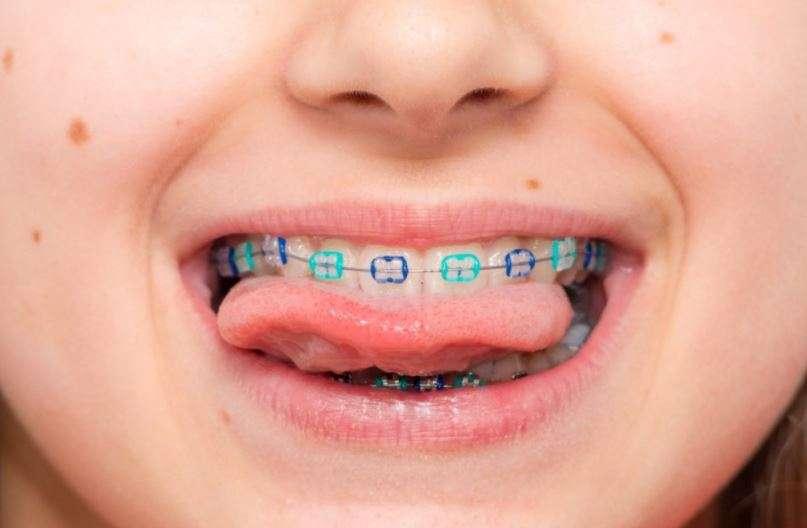 تقويم الاسنان عند الاطفال