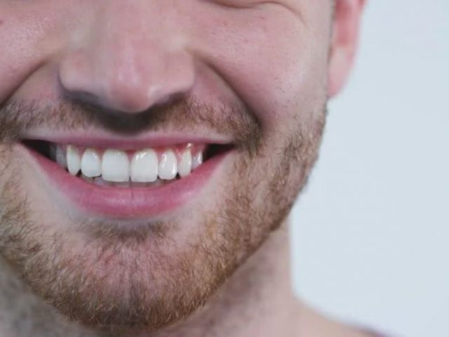 الأسنان اللبنية عند الكبار