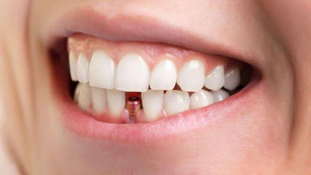هل عملية زراعة الأسنان مؤلمة؟