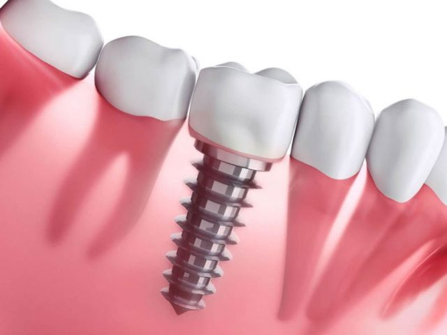 الفرق بين زراعة الأسنان وتركيب الأسنانن