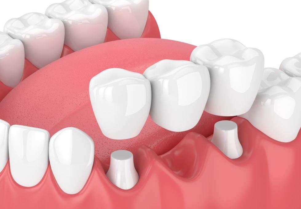 الفرق بين زراعة الأسنان والجسر