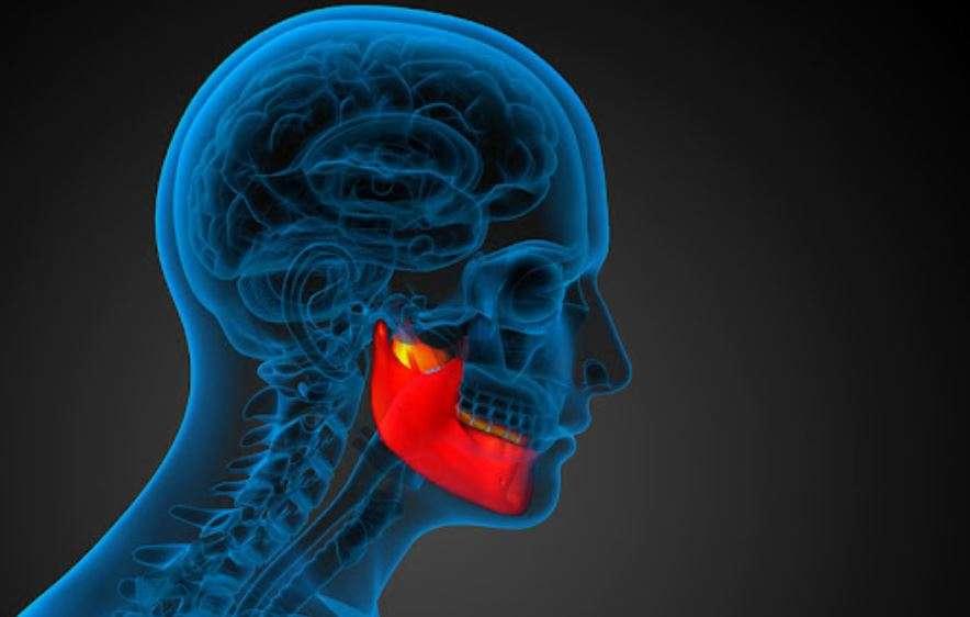 أعراض وعلامات تآكل عظام الفك