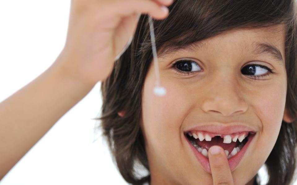 سقوط الأسنان اللبنية