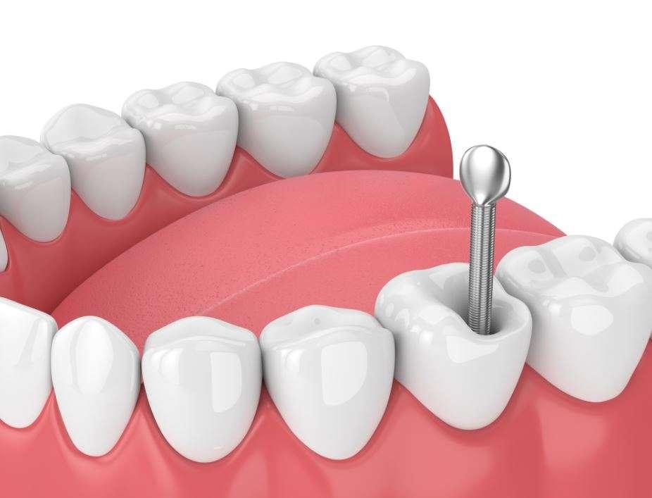 ما هي دعامة الأسنان؟ وكيف تعمل
