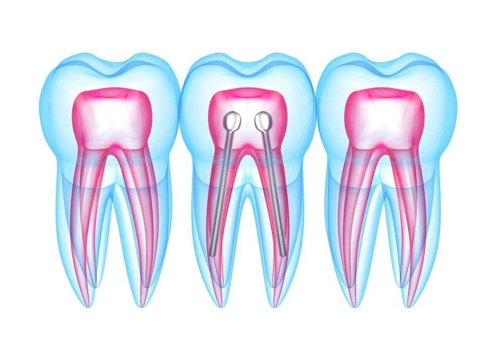 دعامة الأسنان
