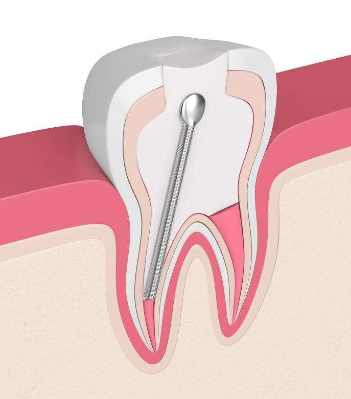 ما هي أنواع دعامات الأسنان؟