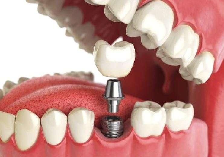 سلبيات زراعة الأسنان