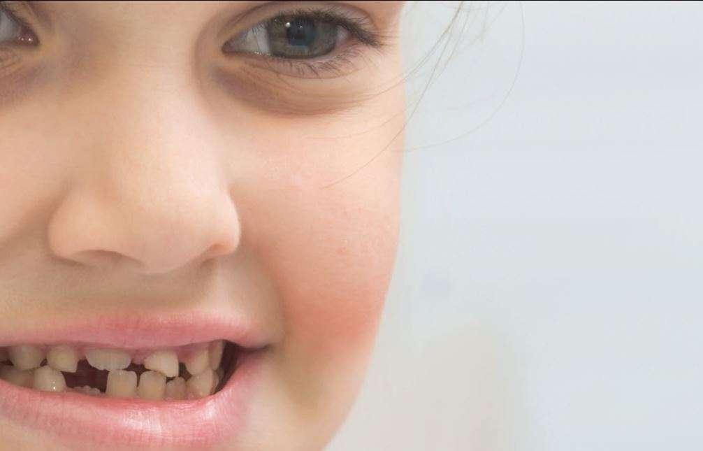 مشاكل الأسنان عند الأطفال