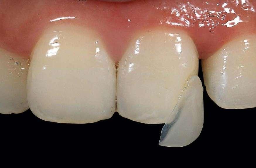 هشاشة الأسنان
