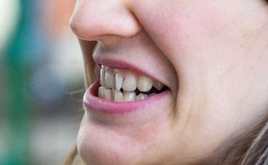 ما هو سوء إطباق الأسنان؟ أسبابه، أعراضه، وطرق علاجه