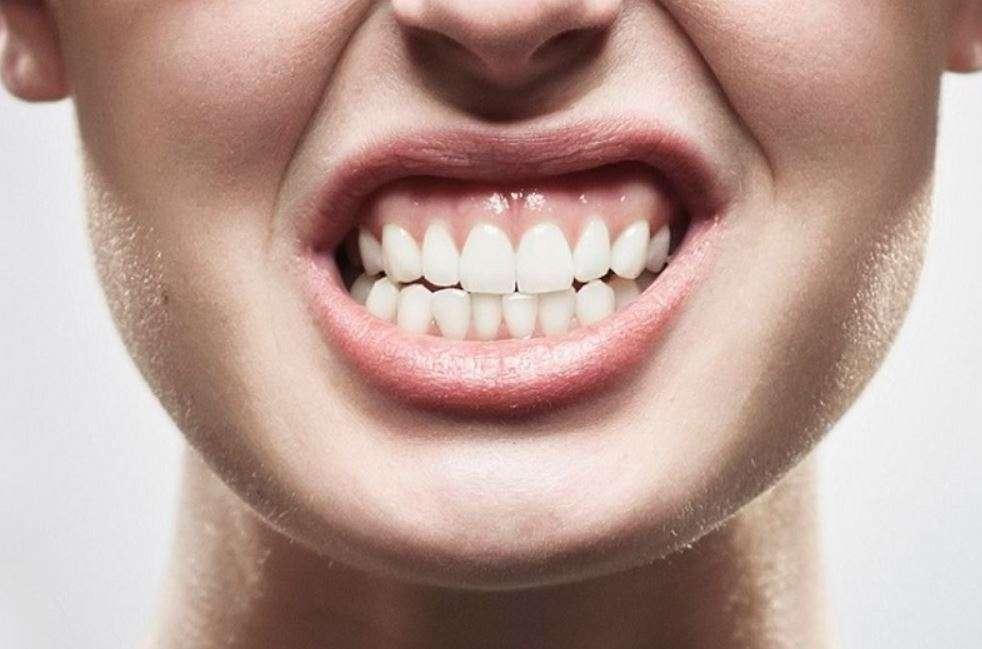 سوء إطباق الأسنان