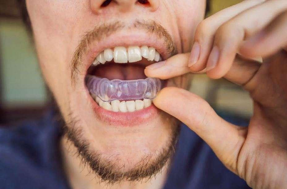 أنواع واقي الفم والأسنان
