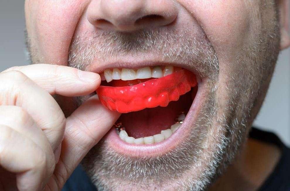 واقي الأسنان الليلي
